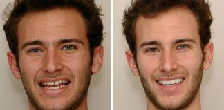 Улыбка до и после виниров