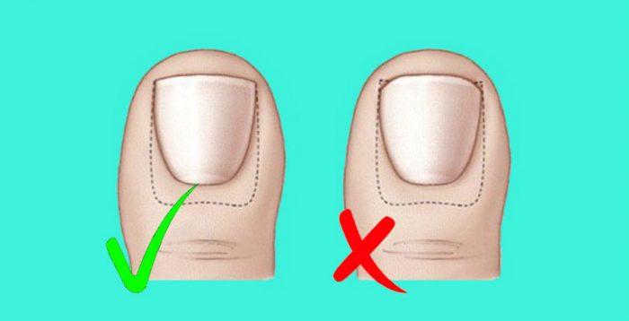 Правила обрезки ногтей на больших пальцах ног