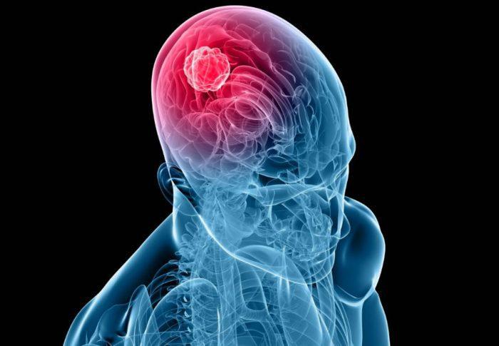 Пухлина головного мозку