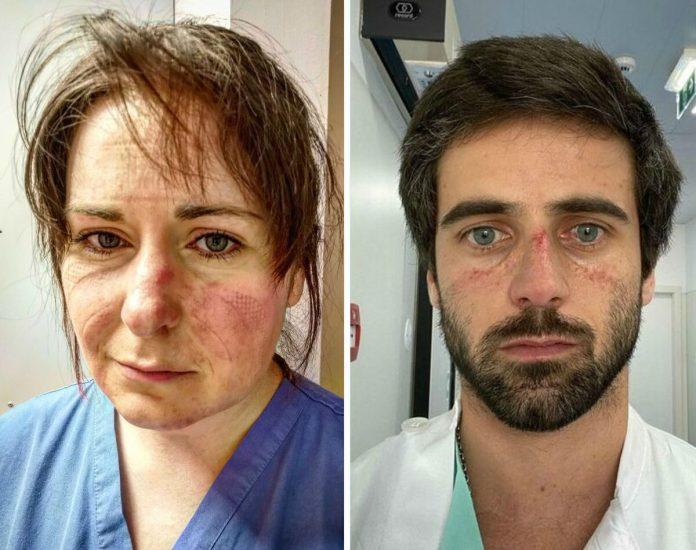 Фото лікарів, які борються з коронавірусом