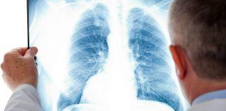 Виды пневмонии
