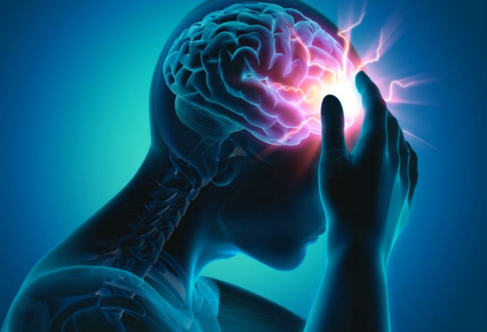 Інсульт головного мозку