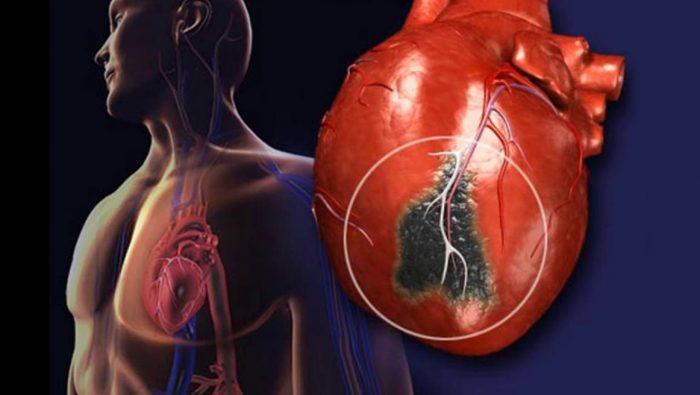 Что происходит с сердцем после инфаркта