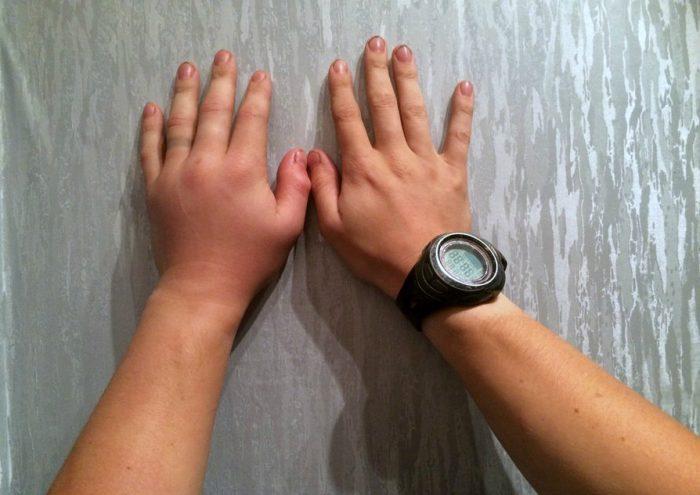 Отек левой руки после укуса гадюки