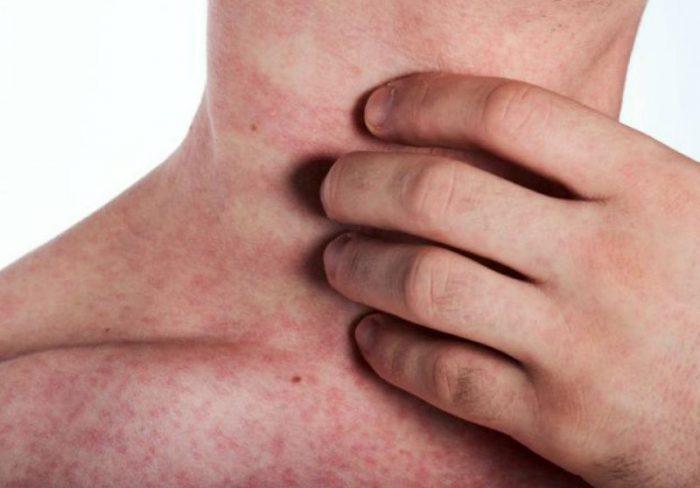 Сыпь при лихорадке денге