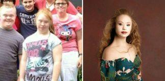 Мадлен Стюарт до и после