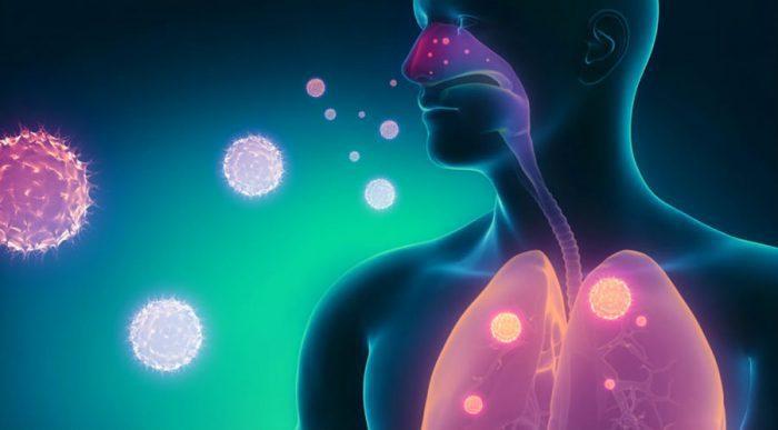 безсимптомна пневмонія