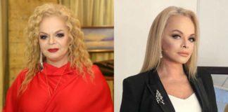 Лариса Долина до и после пластики