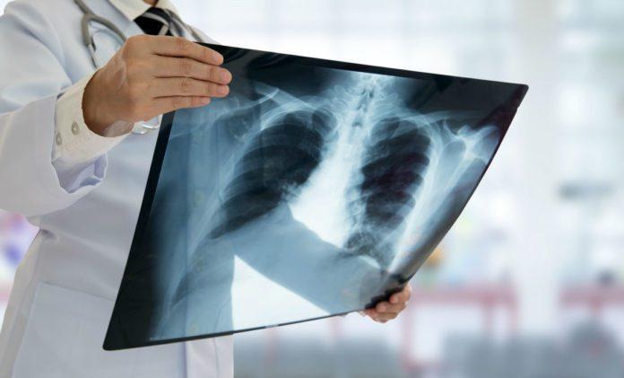 Врач смотрит снимок легких при пневмонии