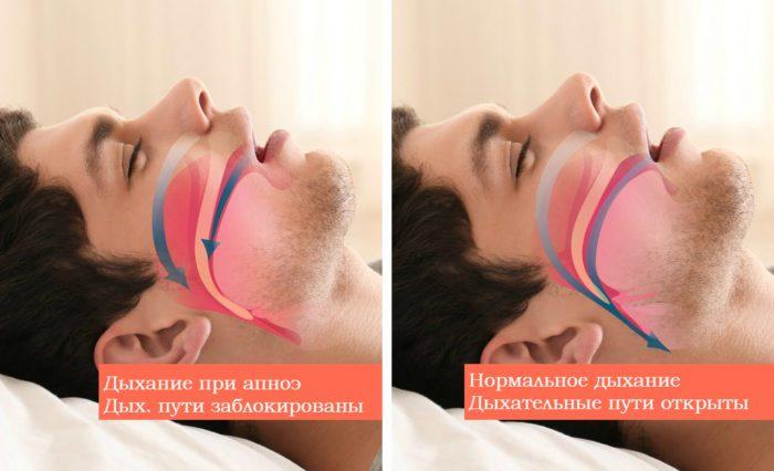 Дыхание при апноэ и нормальное дыхание