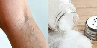 Лечение варикоза солевыми повязками