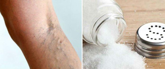 Лікування варикозу сольовими пов'язками