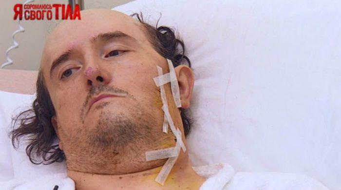 Операция по удалению опухоли прошла успешно