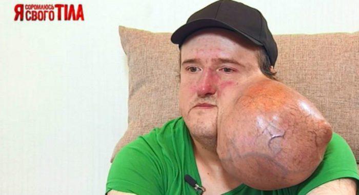 Олег жил с огромной опухолью на щеке долгих 10 лет
