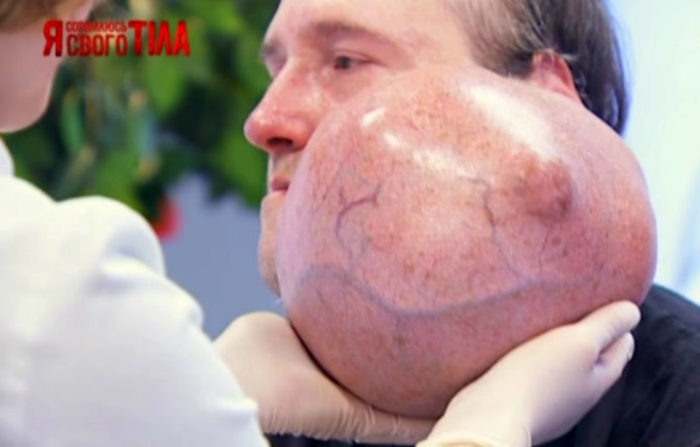 Осмотр опухоли Олега Гилецкого