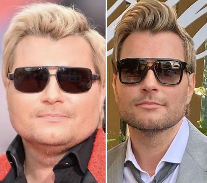 Басков до и после похудения