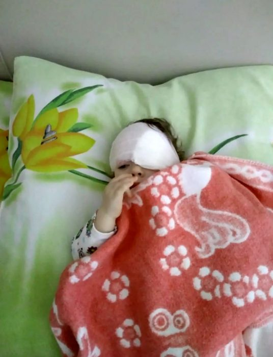 Ангелина после операции