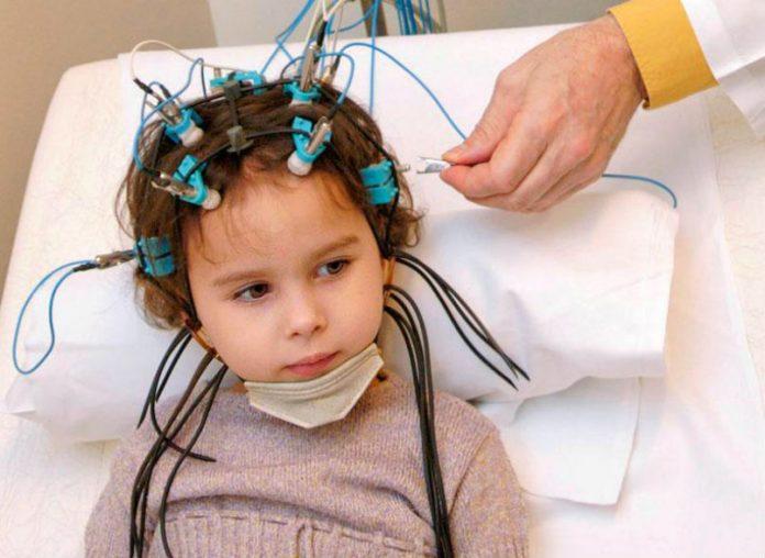 Епілепсія у дітей