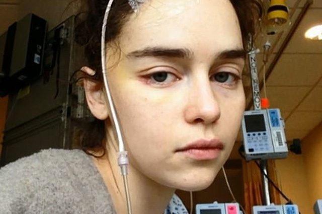 Эмилия после первого инсульта