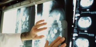 Развитие онкологии