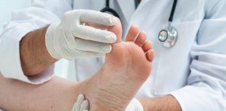 Грибок нігтів на ногах
