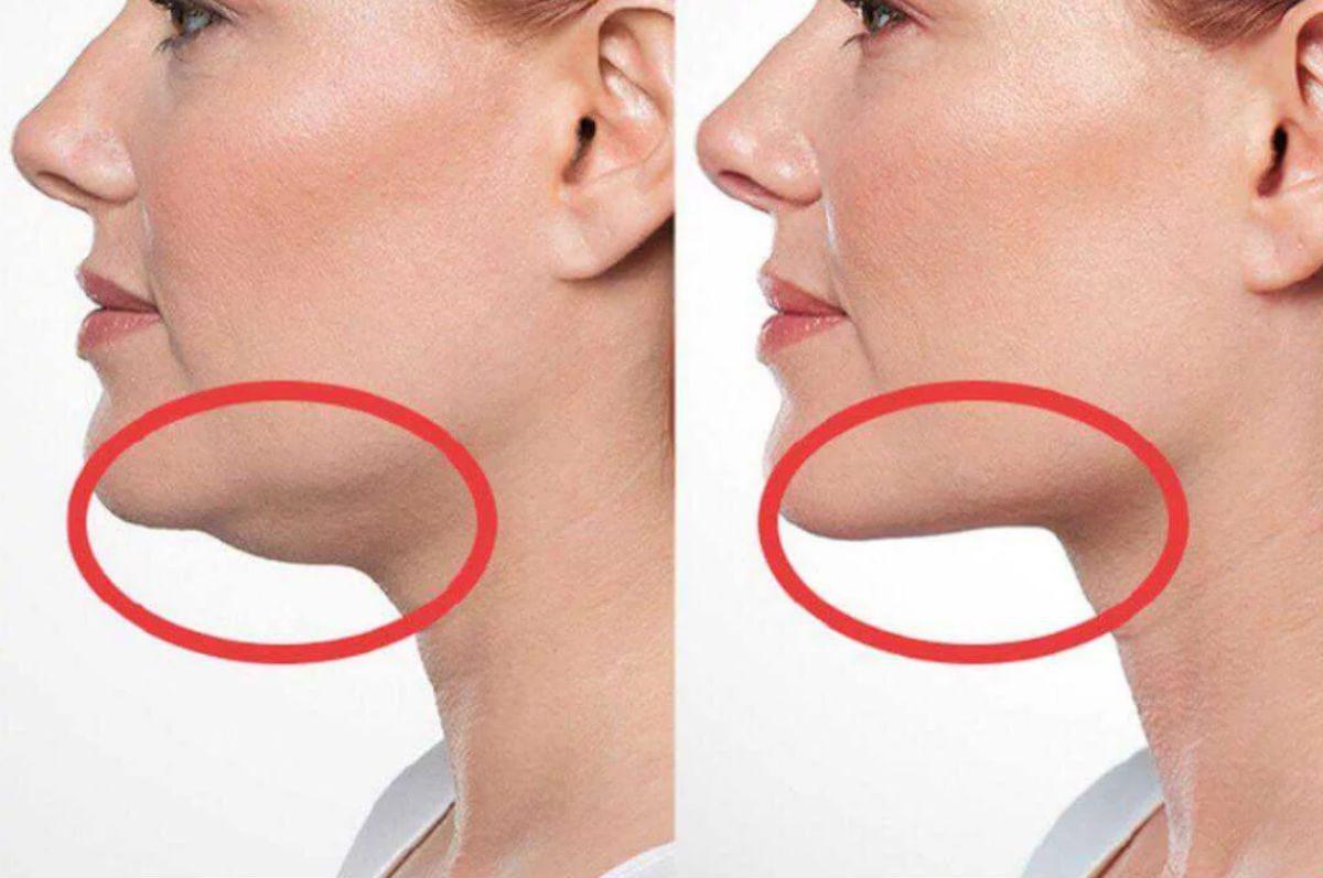 Создаем красивые овал лица: как быстро избавиться от второго подбородка