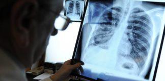 Проверка состояния легких