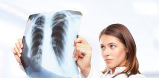 Снимок легких при пневмонии