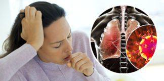 Ознаки пневмонії