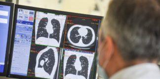 Доктор Комаровський про лікування пневмонії при COVID-19