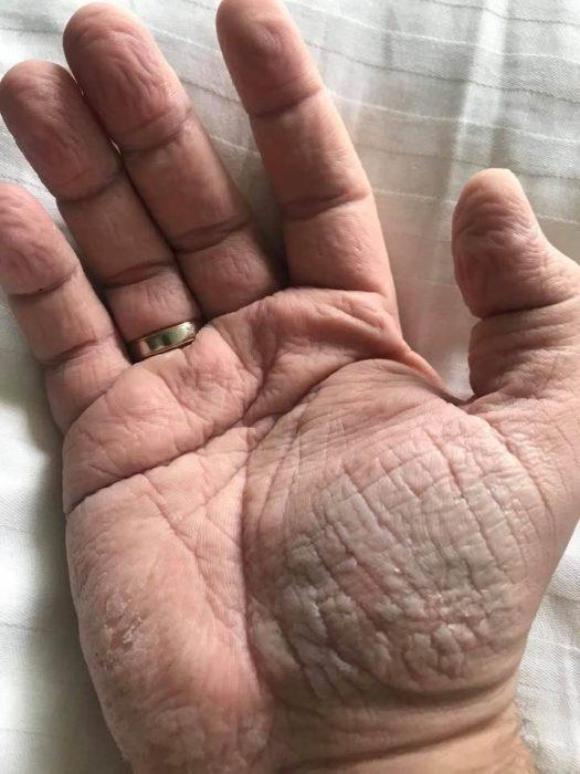 Руки хирурга после смены в 30-градусную жару