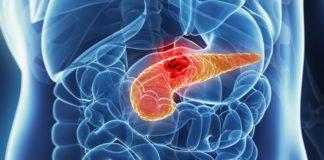 Онкологія підшлункової залози