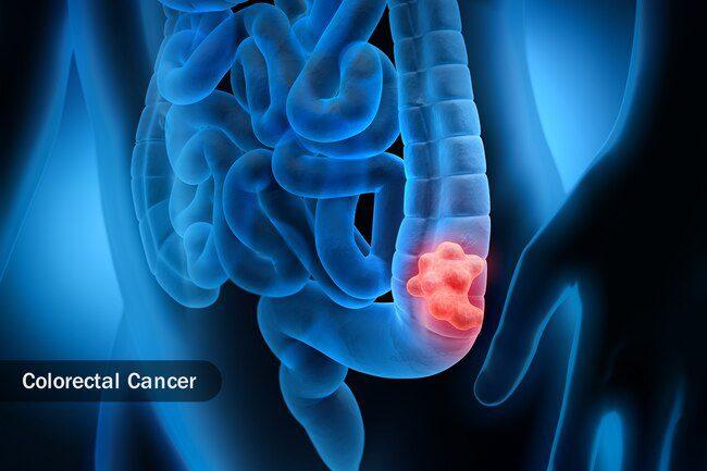 Колоректальний рак