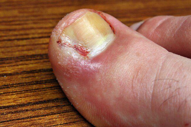 Врослі нігті