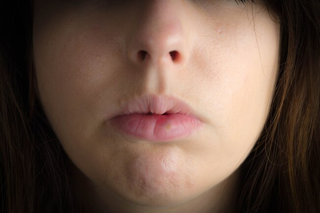 Опухле обличчя