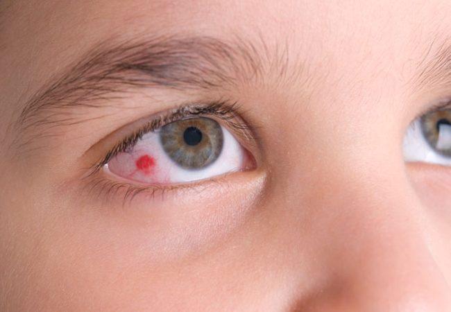 Червоні плями а очах