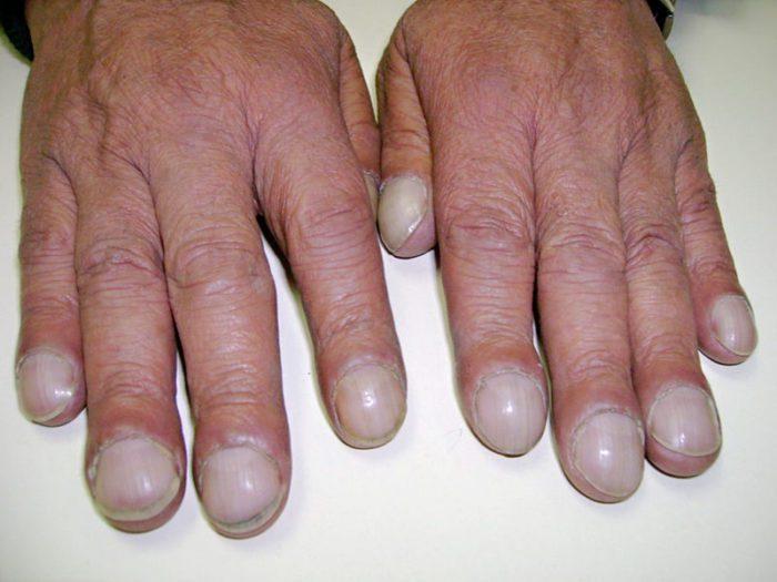 Пример ногтевого клуба