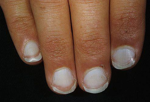 білі нігті