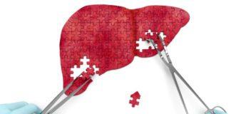 Дифузні зміни в печінці