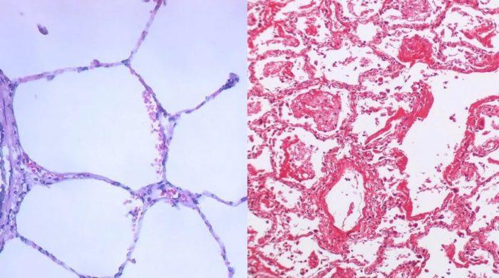 Слева — здоровая легочная ткань, справа — легкое с формированием гиалиновых мембран