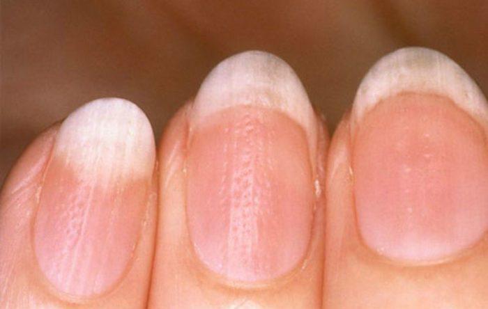 Точечные углубления на ногтях