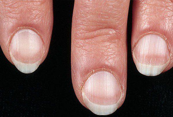 Ногти Терри