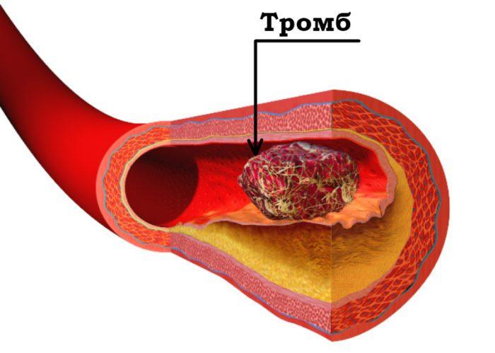 Тромб