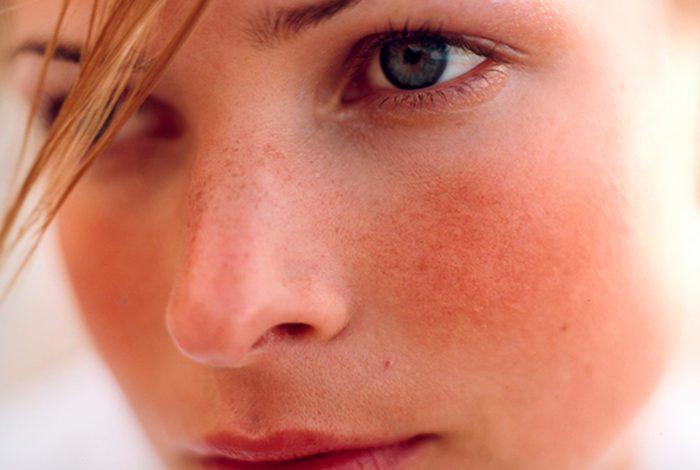 почервоніння обличчя