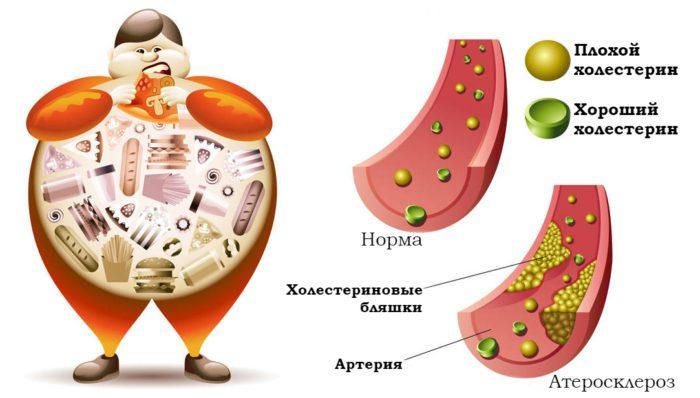 Вредный и полезный холестерин