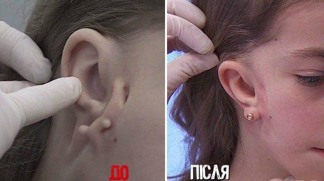 Катя Запорожец до и после