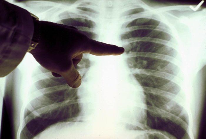 Рентген легенів