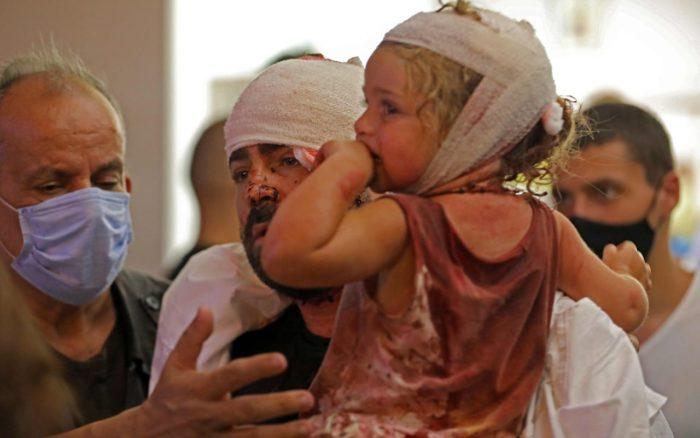 На данный момент ливанский МОЗ объявил о 2750 пострадавших